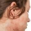 Экзема – заболевание кожи или нервной системы?