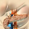 Лечение поджелудочной железы: обзор проблемы