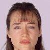 Тиреотоксикоз: проблемы со щитовидкой