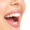 5 способов отбеливания зубов