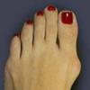 Как вылечить косточки на ногах – все средства хороши