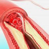 норма холестерина в крови человека