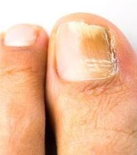 Народные средства от грибка ногтей ног форум
