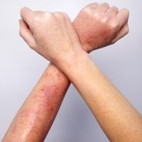 Боли от синдрома раздраженного кишечника симптомы и лечение