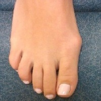 Как остановить рост косточки на ноге возле большого пальца