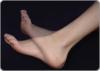 Плоскостопие - стоит ли его лечить?