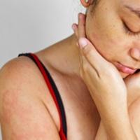 Сифилитическая сыпь: признак грозной болезни