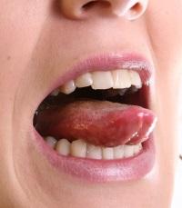 белый язык и неприятный запах изо рта
