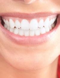 Отбеливание зубов – неожиданные заблуждения