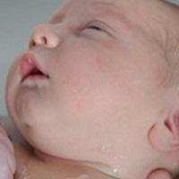Лечение герпеса у детей – средства гигиены
