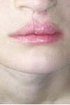 Заячья губа